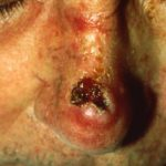 what is the most dangerous type of skin cancer