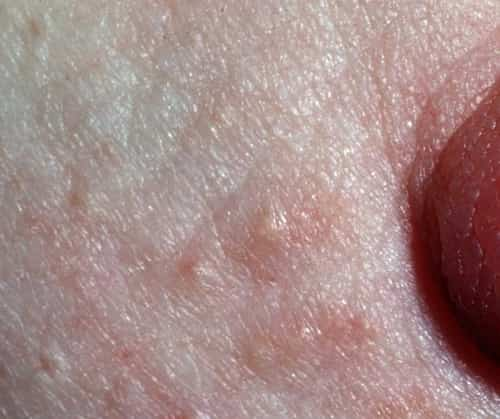 Early pregnancy and Montgomery's tubercles