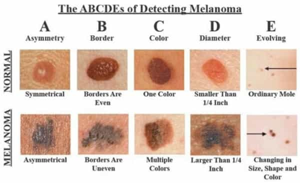 Pictures of difference between normal and cancerous moles