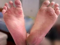 blisters on bottom of foot