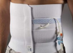 Using Abdominal Binder after Surgery
