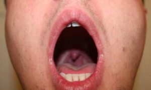 dry scratchy throat