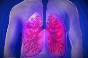 Mortality of patients with pulmonary embolism