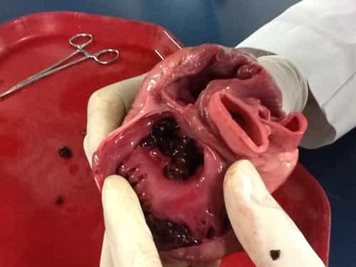 Heart - Organ of Circulatory System