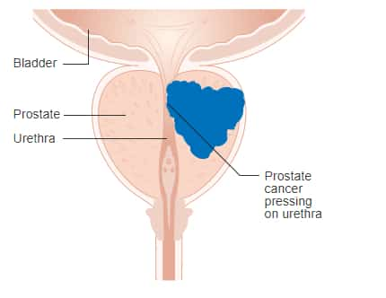 Prostate Cancer Signs