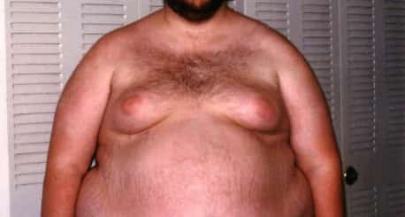 Gynecomastia is swelling of the breast tissue in boys or men, caused by an imbalance of the hormones estrogen and testosterone. Gynecomastia can affect one or both breasts.