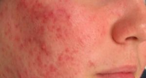 Woman has red spots on cheeks