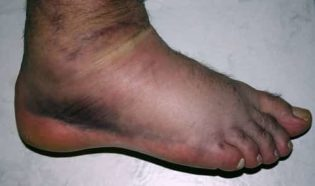 """When an ankle is injured with a sprain, tendon injury, or fracture, inflammation occurs. Blood vessels become """"leaky"""" and allow fluid to ooze into the soft tissue surrounding the joint."""