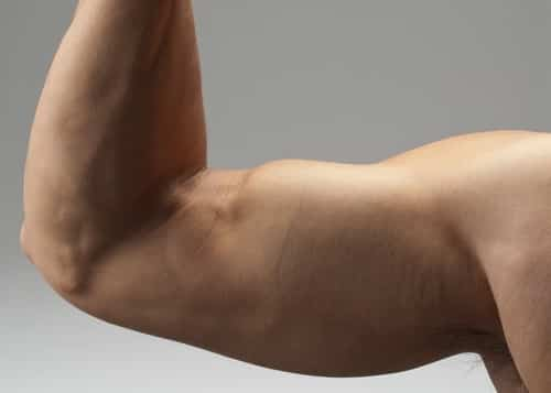 Muscle pain in the upper arm below the shoulder is often caused by tension and trigger points that you can usually treat yourself, with excellent results.