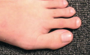The symptoms of predislocation syndrome often include swelling and warmth under the base of the 2nd toe.
