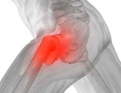 Hip alignment issues are one of the major causes of hip pain during and after running. If that pain is left untreated, injury almost always follows.