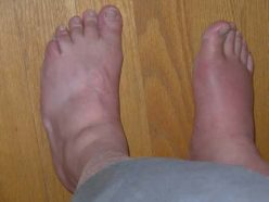 Trying these home remedies for gout relief can reduce your pain and ease other symptoms.