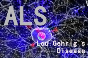 Most people who develop Lou Gehrig's Disease are between the ages of 40 and 70, with an average age of 55 at the time of diagnosis.