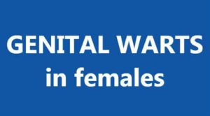 Genital warts can appear any part of the body that is exposed to sexual contact, for example, in women, the vulva, vagina, cervix, or groin.