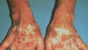 "Liver spots are medically termed 'Lentigos"" and also known as age spots. They are sharply defined white (light brown) to black flat patches of skin that appear on the face, back of the hands and other areas of the body."