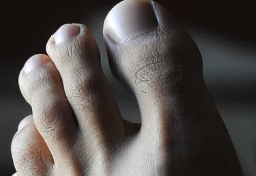 Common warts usually grow on your fingers and toes, but can appear elsewhere.