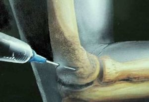 Cortisone injections can be used to treat the inflammation of small areas of the body (local injections)