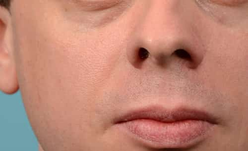 Nose twitches could be a symptom of a damage of a nerve. It could also be as a result of tic disorder such as Tourette's syndrome.