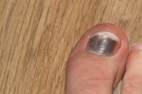 Hematoma under the toenail