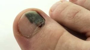 Well, bruised toenail will definitely go away over time but form that you have to do something.