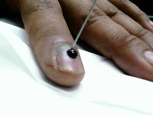 Needle used to remove dark spot from under the nail