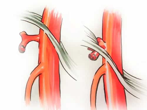 The median arcuate ligament syndrome (MALS, likewise referred to as celiac artery compression syndrome, celiac axis syndrome, celiac trunk compression syndrome or Dunbar syndrome) is a condition defined by stomach pain attributed to compression of the celiac artery and possibly the celiac ganglia by the median arcuate ligament.