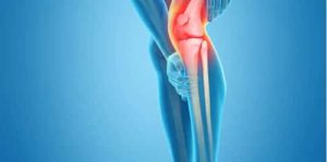 If you have problem straightening your leg or it harms to do so, you probably have a severe knee injury. To test this, start in a seated position and attempt to lift your lower leg using your own leg muscles.
