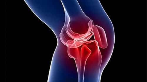 Reconstruction of the ACL (anterior cruciate ligament) and repair of a torn meniscus are among the most commonly performed arthroscopic surgeries.